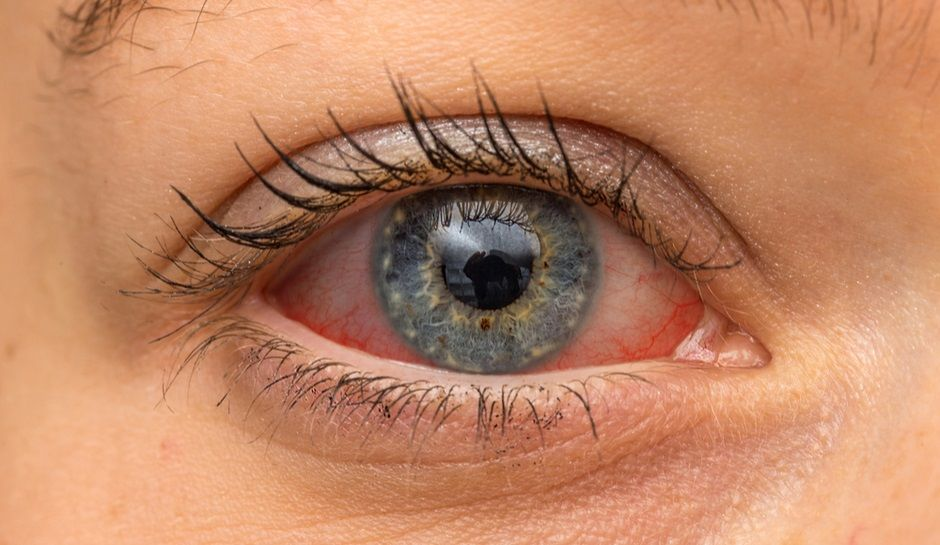 Symptoms Of Eye Damage From Solar Eclipse Check Biotech