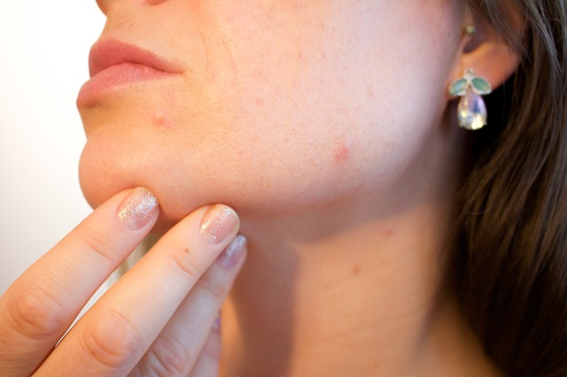 What is Jawline Acne Saying About Your Health?