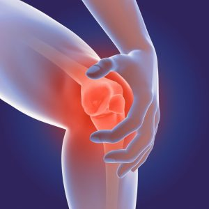 What are the Signs and Symptoms of Osteoarthritis