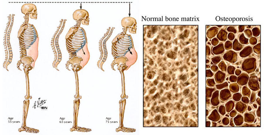 osteoporosis from sitting all day at your desk