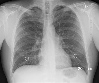 Lung Cancer Warning Signs