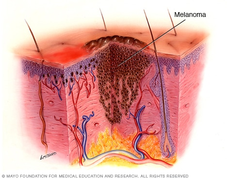 Melanoma On The Rise, Is Early Screening The Answer?