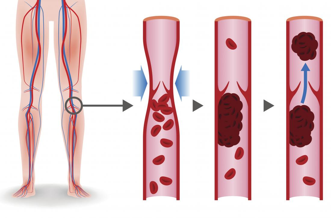 5 Signs You Could Have A Blood Clot