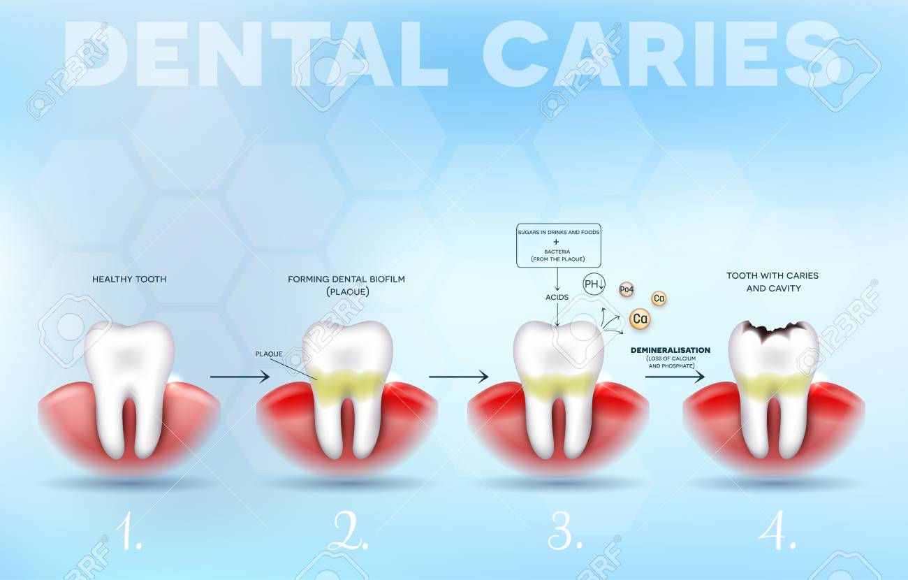 Symptoms and Treatments of Dental Caries
